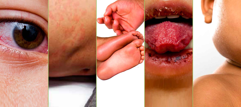 Symptômes de la maladie de Kawasaki