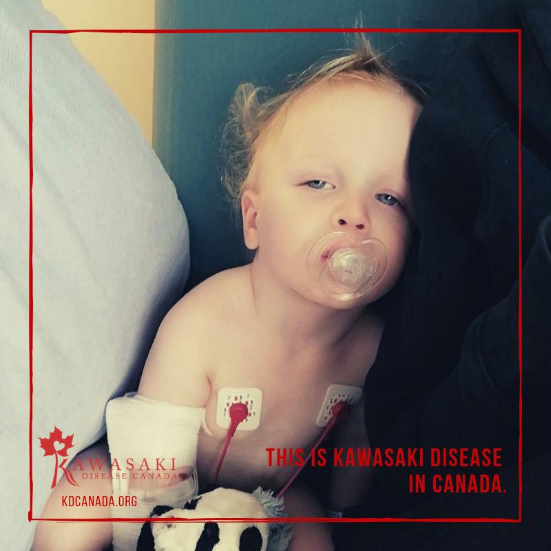 Jayce Kawasaki disease